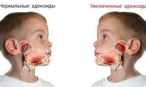 Как лечить аденоиды у детей?