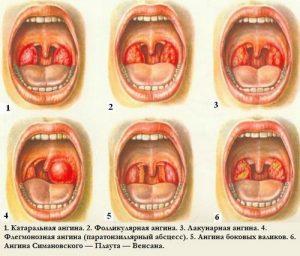Гнойная ангина: симптомы и лечение