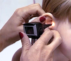 Болят уши при простуде: чем лечить и как действовать