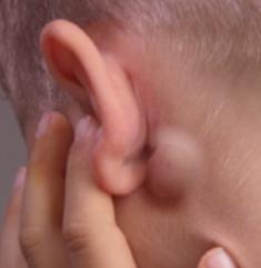 Условия и причины возникновения шарика за ухом