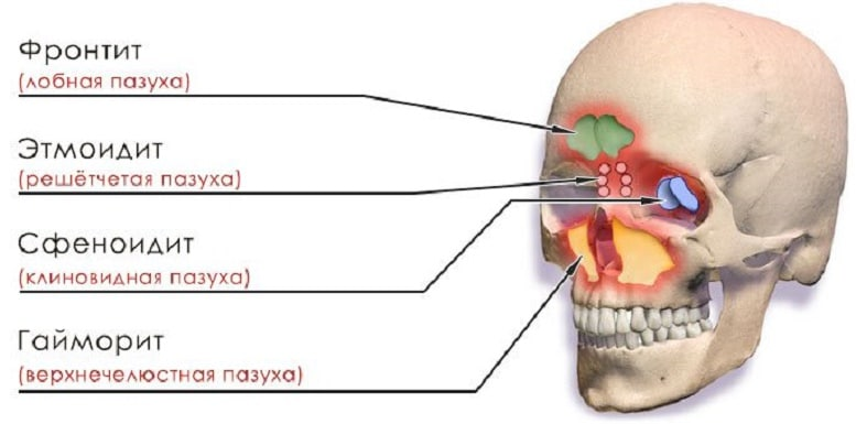 синусит носа