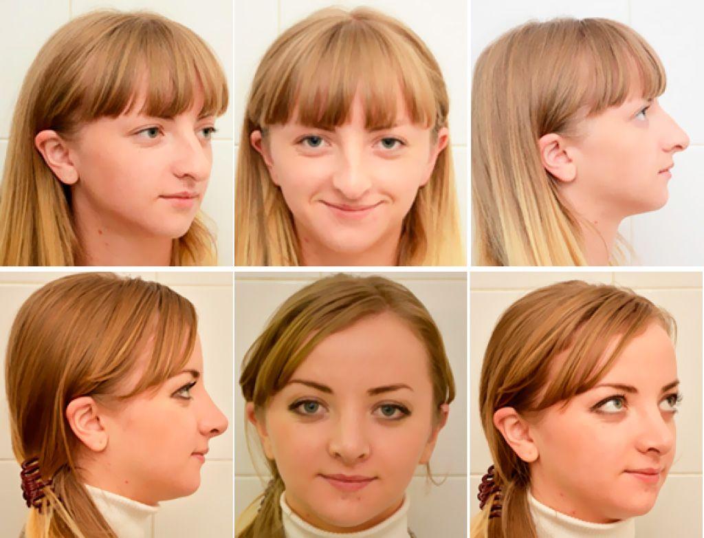 ринопластика на лице