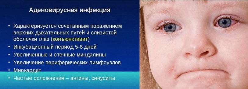 аденовирусная инфекция у ребёнка
