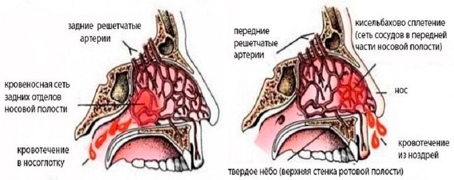 течет кровь из носа